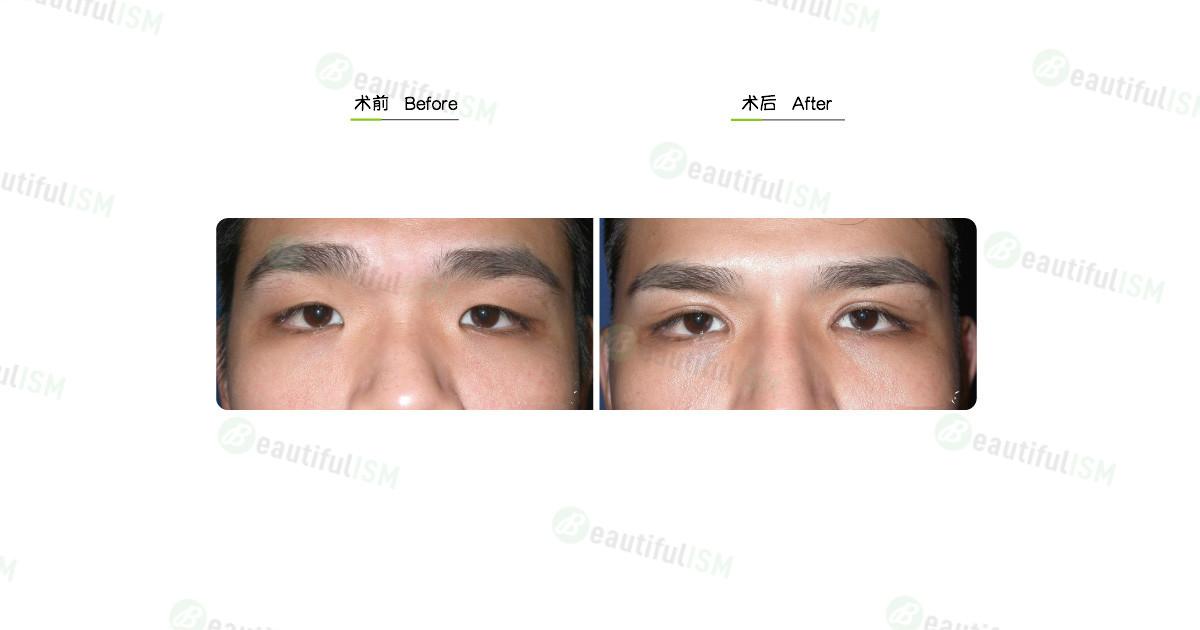 韩式微创双眼皮+开内眼角(男)效果图,案例前后对比照片