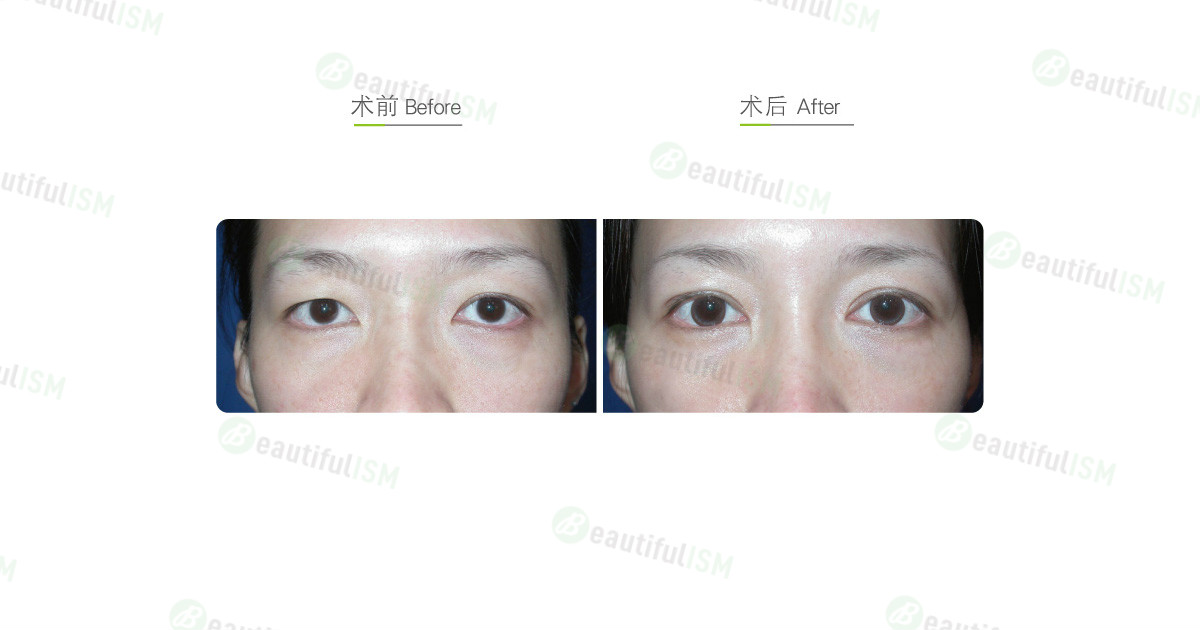 韩式三点定位双眼皮+大小眼矫正手术效果图,案例前后对比照片