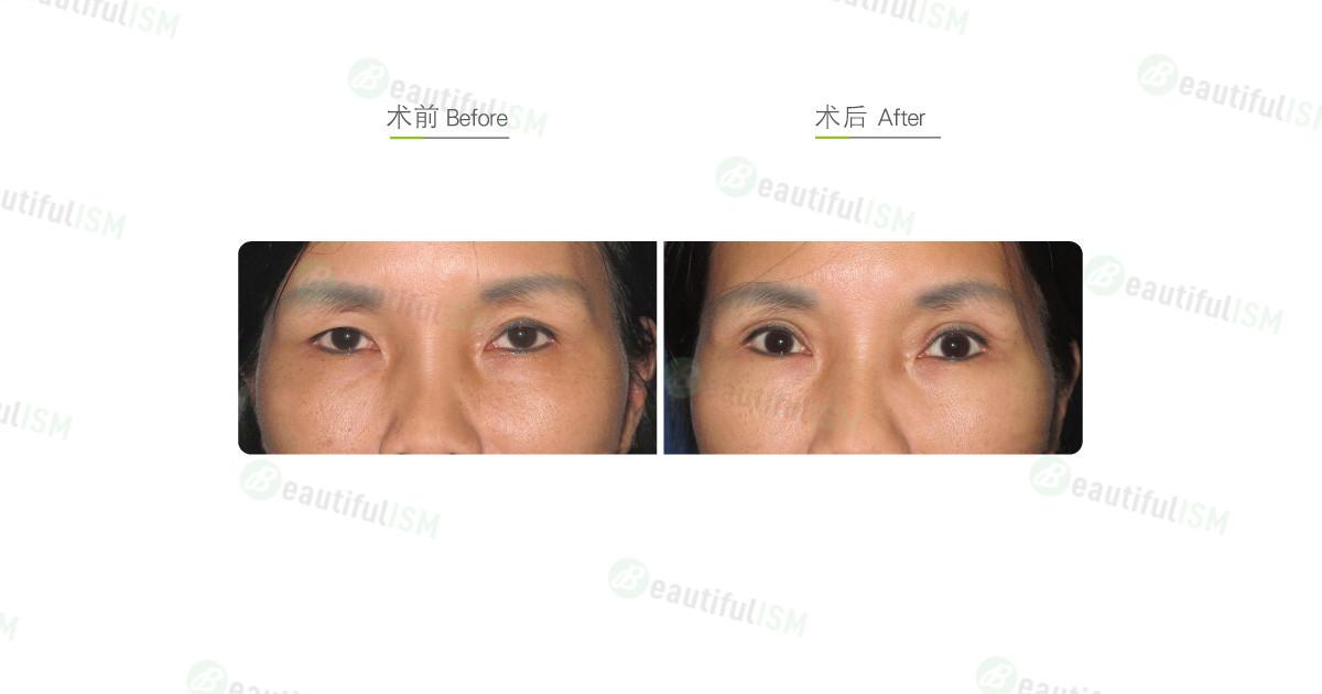 全切双眼皮+提眼肌放大手术效果图,案例前后对比照片