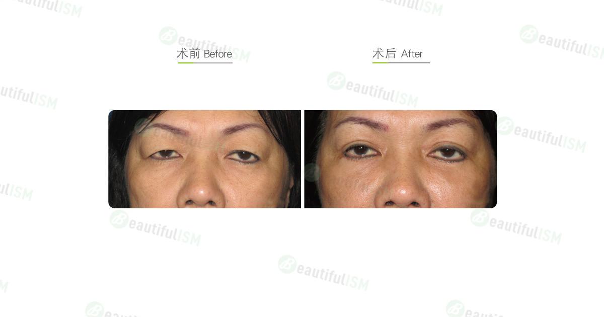 全切双眼皮+外切去眼袋(女)效果图,案例前后对比照片