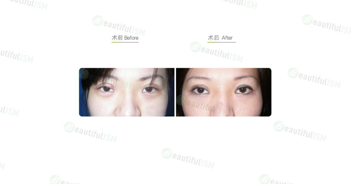 双眼皮修复+提眼肌整形手术效果图,案例前后对比照片