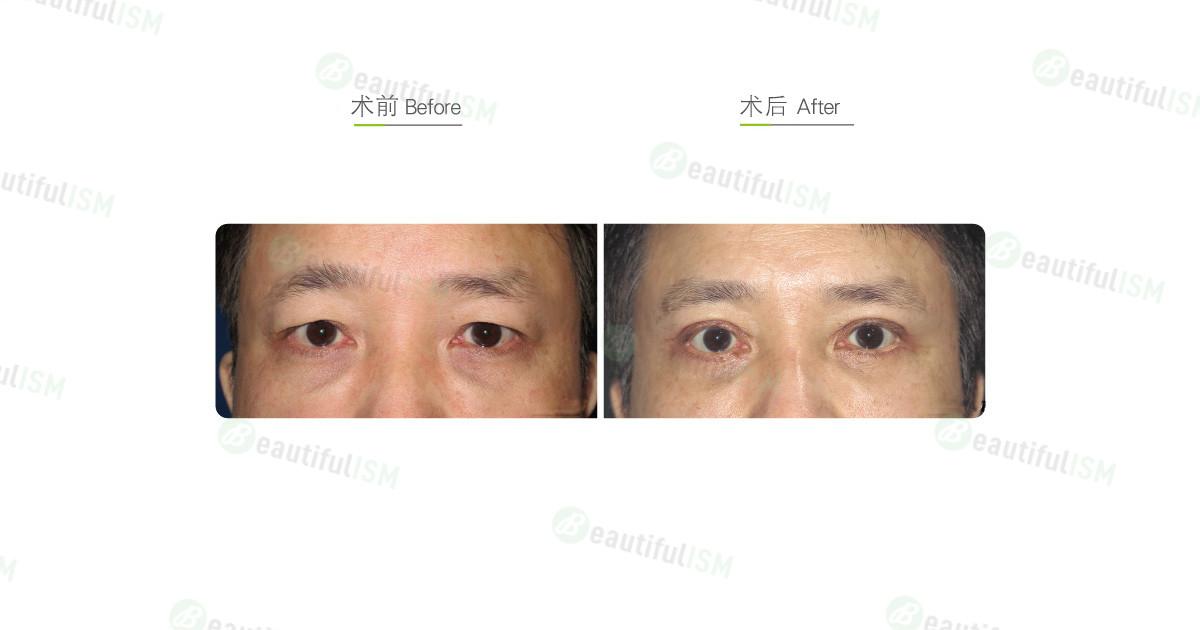 全切双眼皮(男)效果图,案例前后对比照片