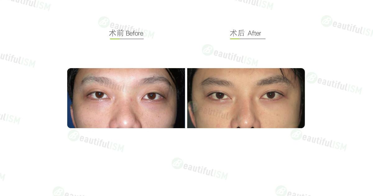 韩式三点定位双眼皮(男)效果图,案例前后对比照片