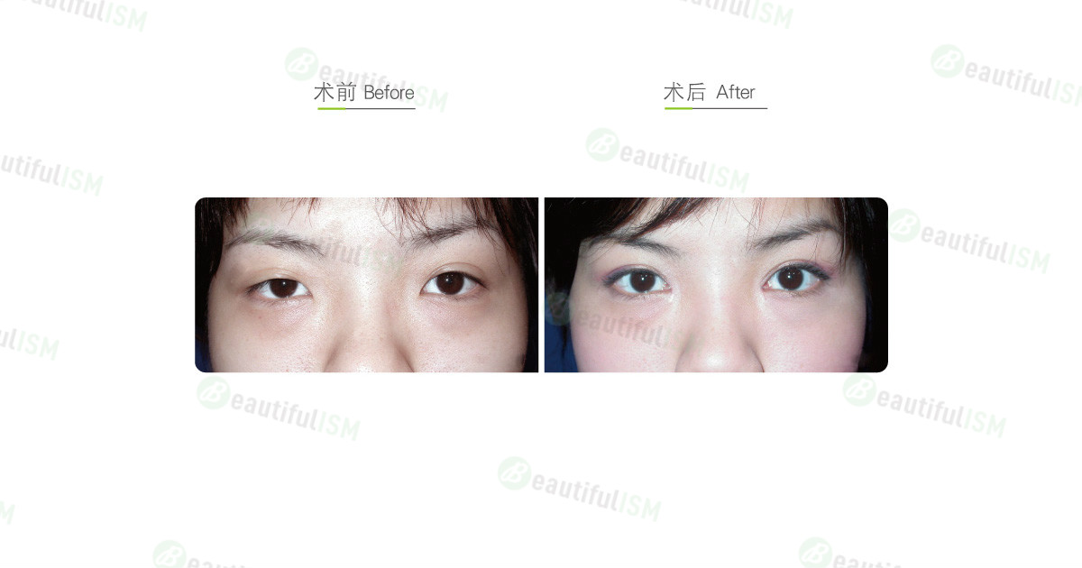 韩式微创双眼皮+开内眼角+提眼肌放大(女)效果图,案例前后对比照片