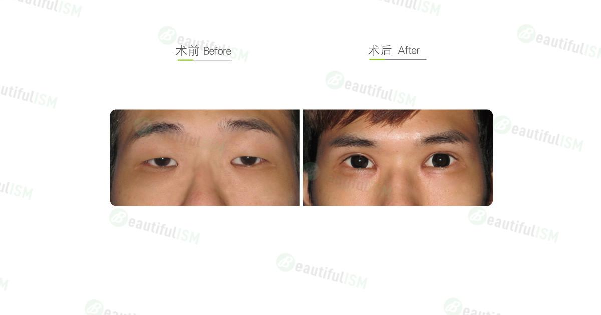 韩式微创双眼皮+开内眼角+提眼肌放大(男)效果图,案例前后对比照片