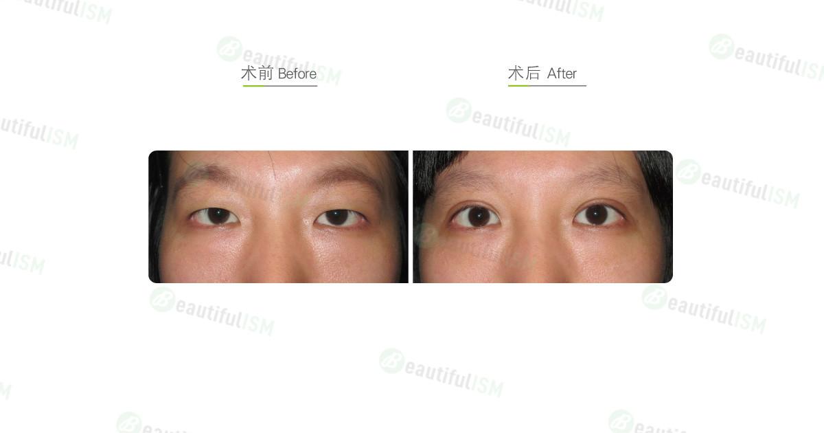 韩式三点定位双眼皮(女)效果图,案例前后对比照片