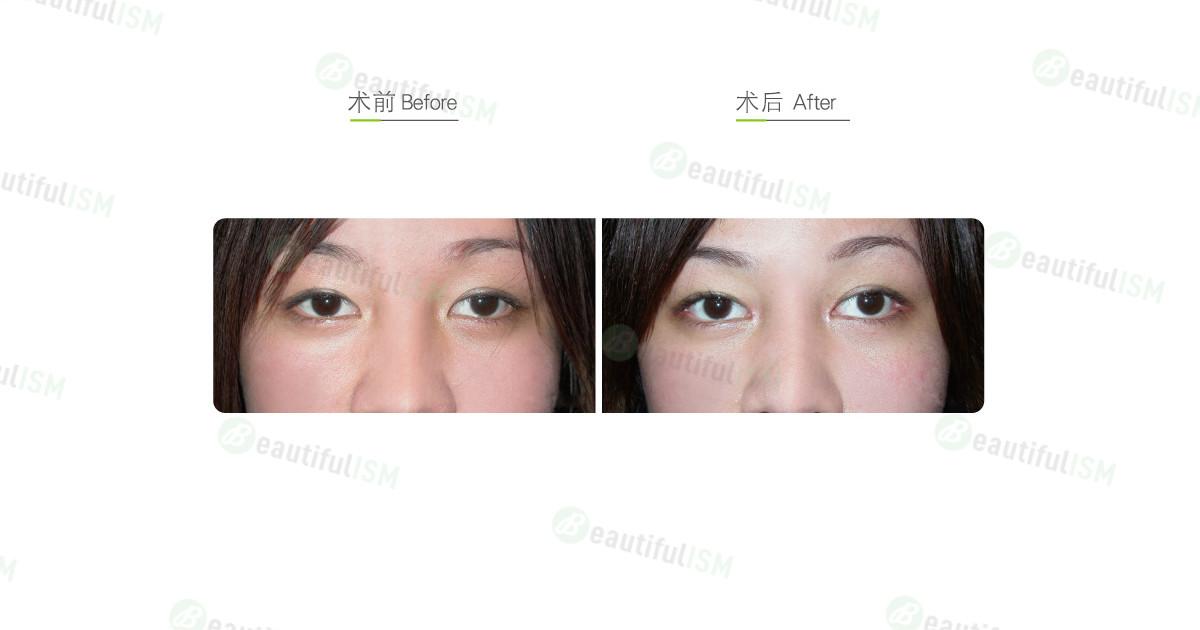 开内眼角+开外眼角手术效果图,案例前后对比照片