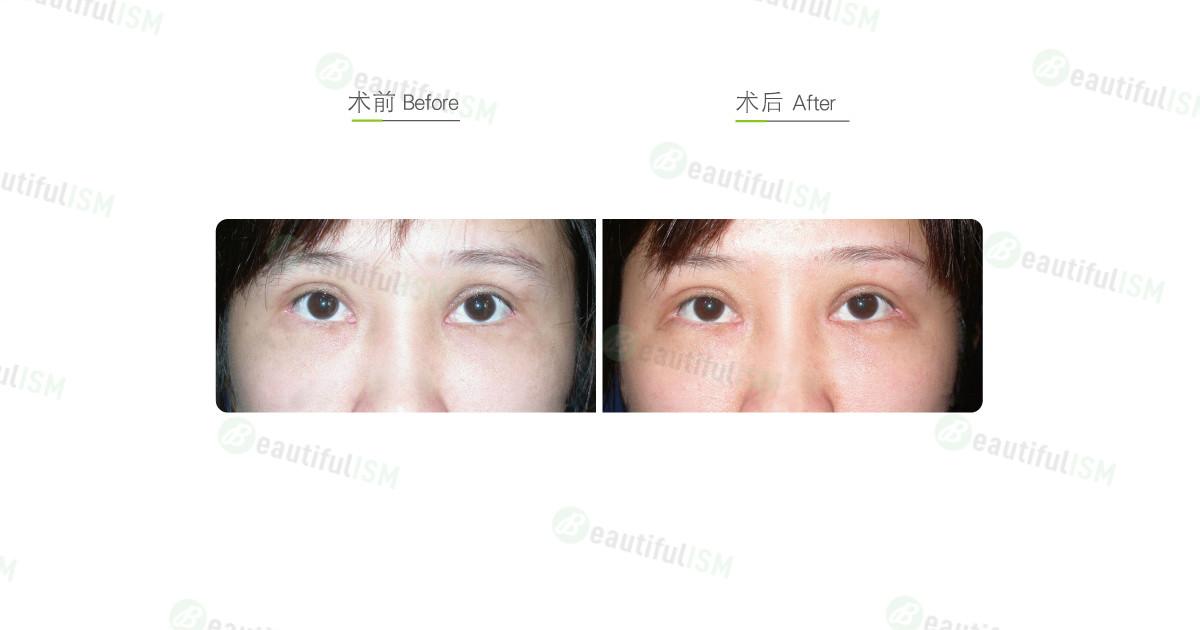 开内眼角-缝回手术效果图,案例前后对比照片