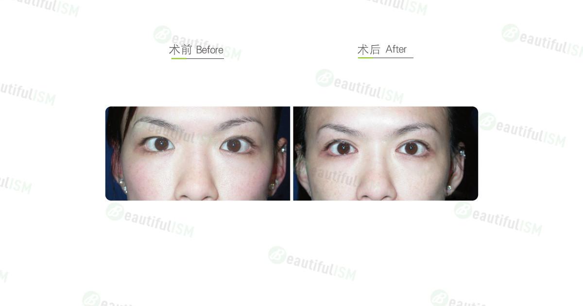 开内眼角-斗鸡眼矫正手术效果图,案例前后对比照片