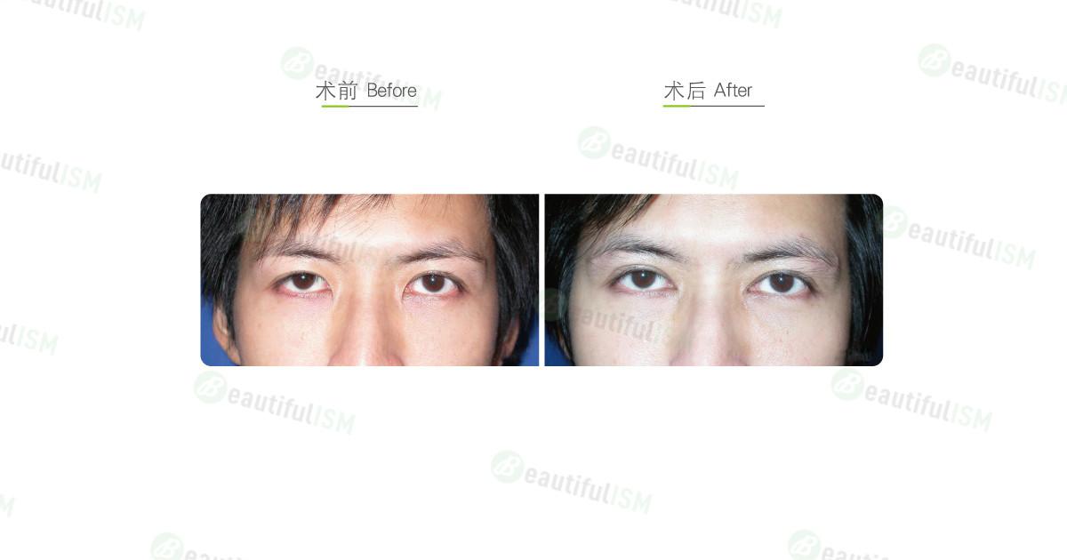 开内眼角(男)效果图,案例前后对比照片