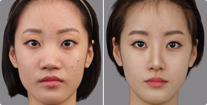 收缩毛孔-光子嫩肤效果图,案例前后对比照片
