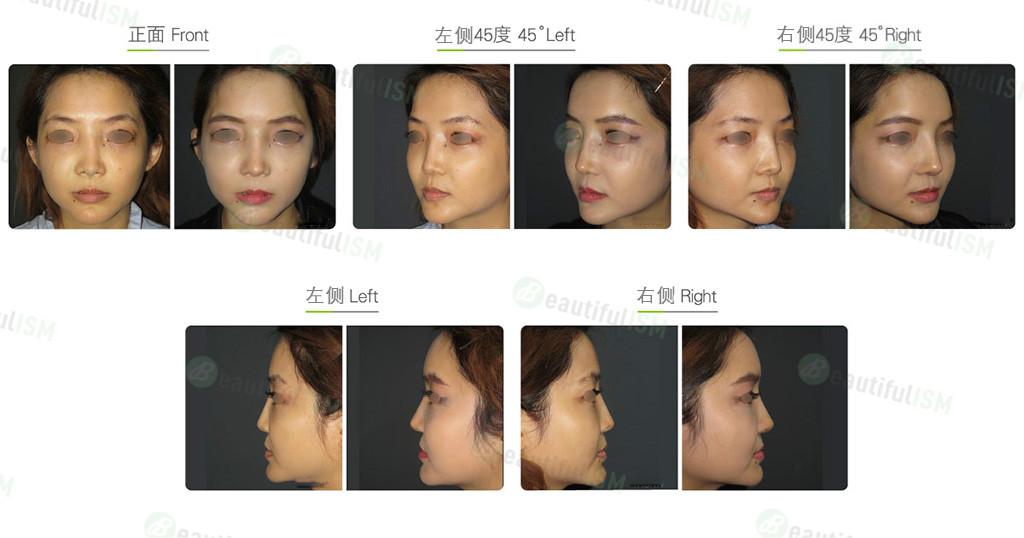鼻骨缩减+韩式隆鼻(女)效果图,案例前后对比照片