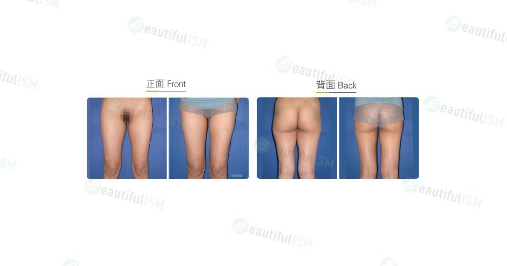 大腿吸脂(女)效果图,案例前后对比照片