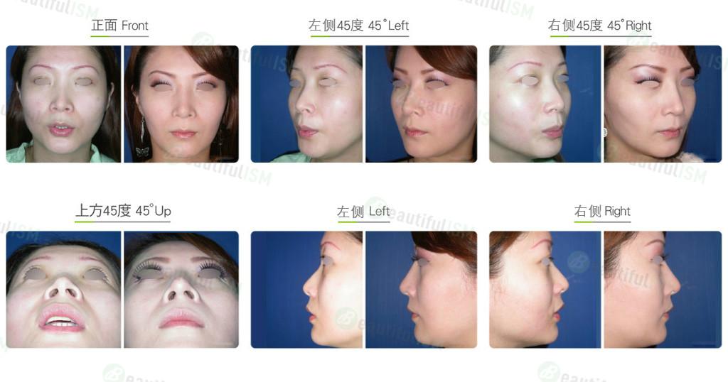 玻尿酸隆鼻(女)效果图,案例前后对比照片