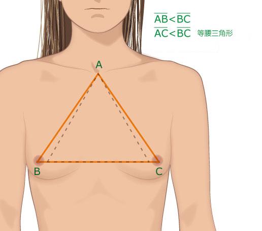 乳房外扩正面示意图
