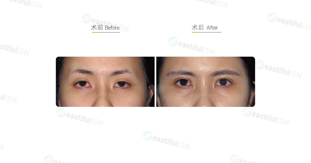 提眼肌整形(女)效果图,案例前后对比照片