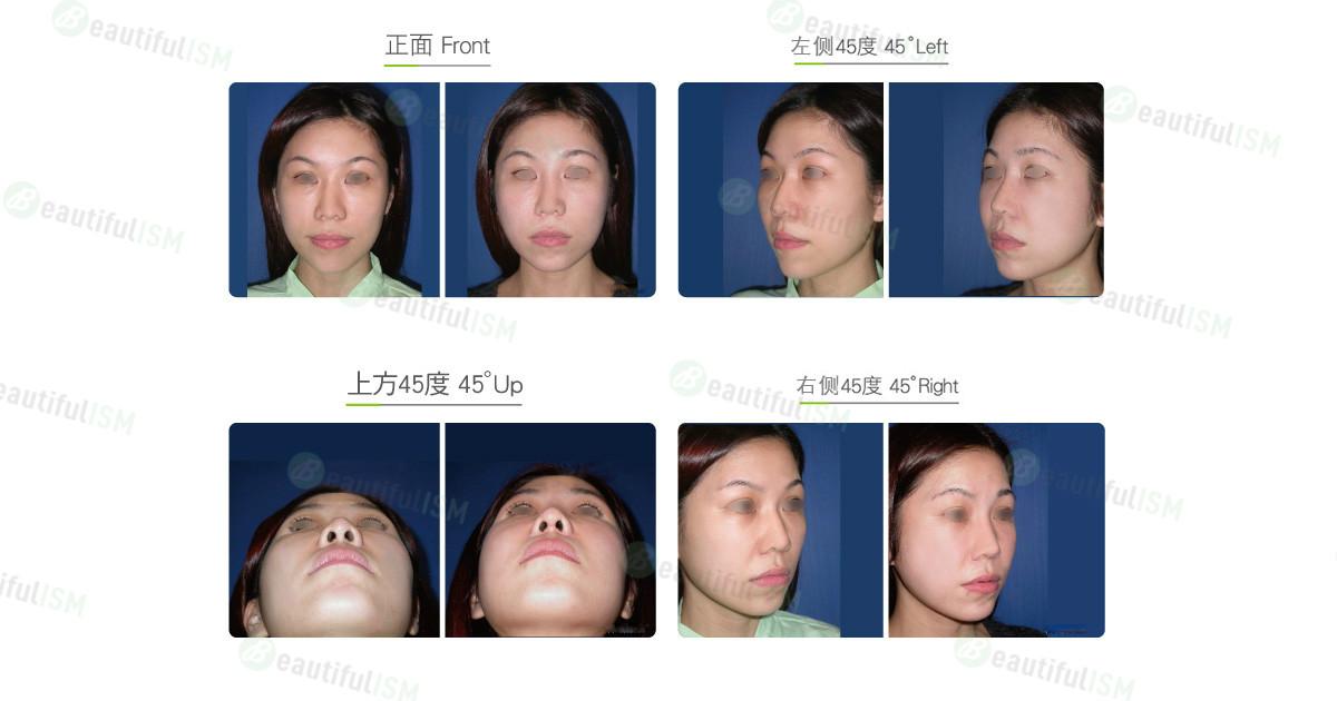 颧骨整形-颧骨弓缩减(女)效果图,案例前后对比照片