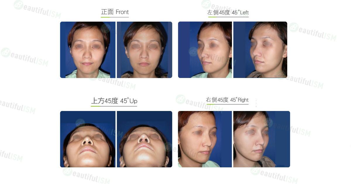 颧骨整形-颧骨体缩减+中脸紧致拉皮(女)效果图,案例前后对比照片