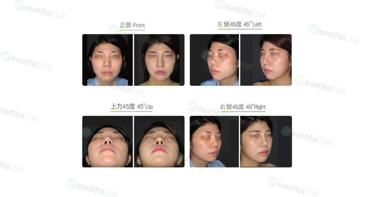 国字脸整形(女)效果图,案例前后对比照片