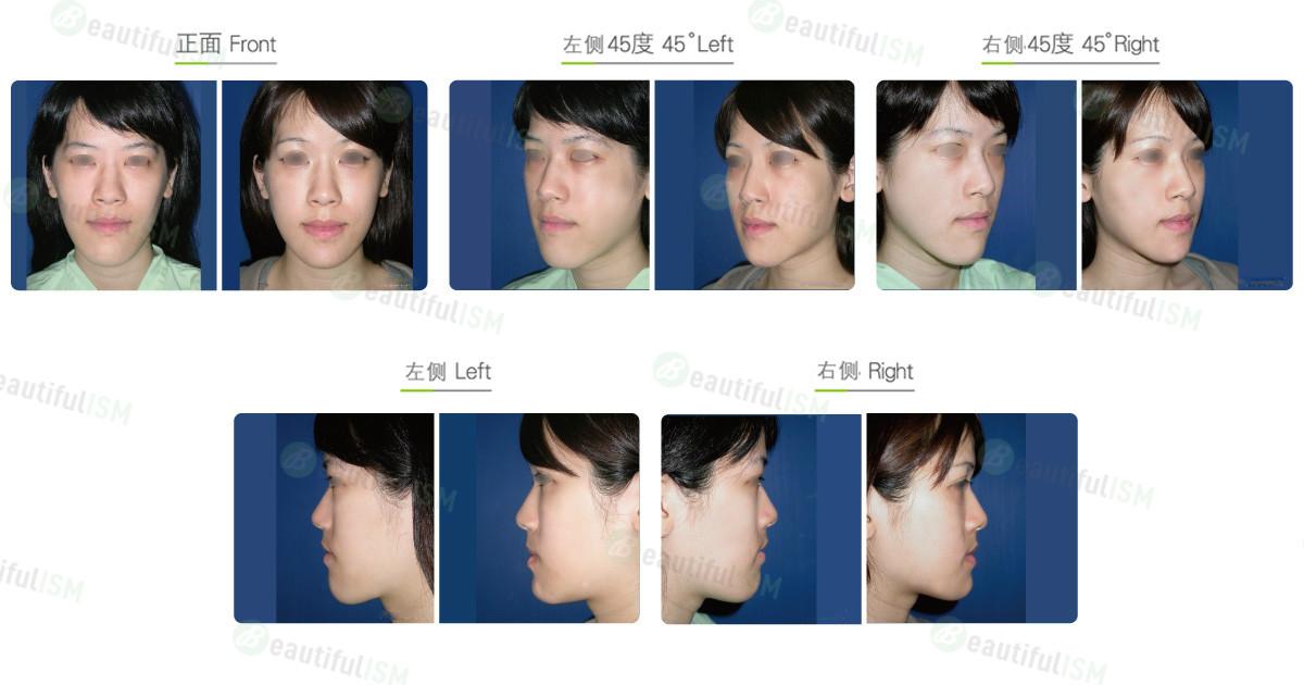 下巴整形-下巴侧缘削骨(女)效果图,案例前后对比照片