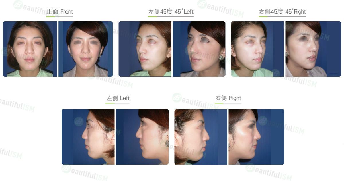 下巴整形-下巴T型削骨(女)效果图,案例前后对比照片