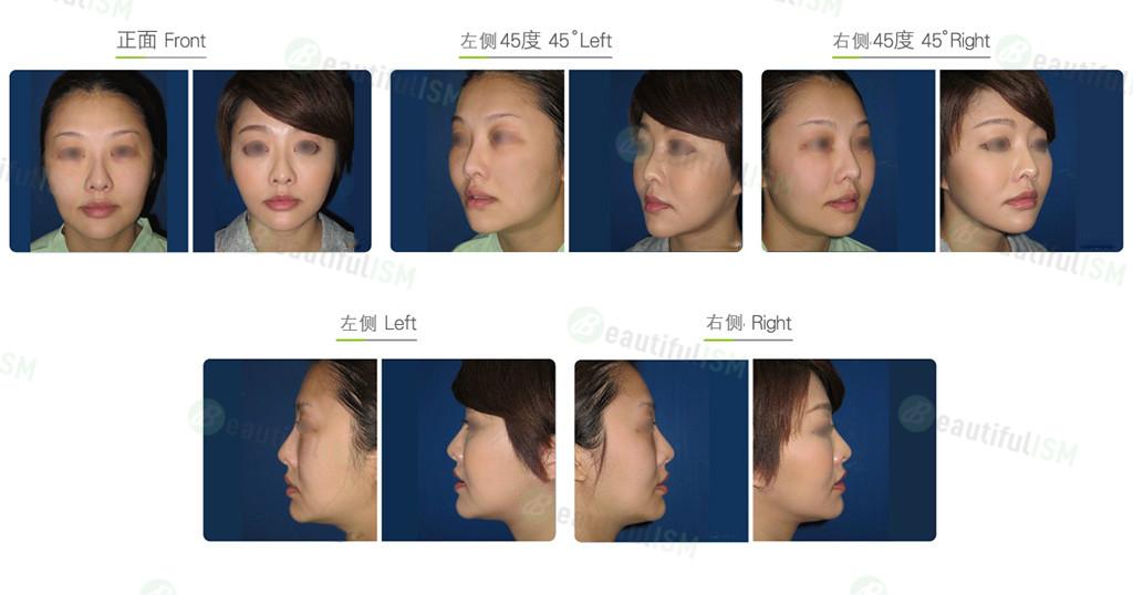 下脸部提拉-下巴线筋膜悬吊(女)效果图,案例前后对比照片