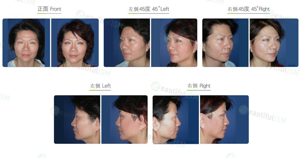 面部埋线提升(女)效果图,案例前后对比照片
