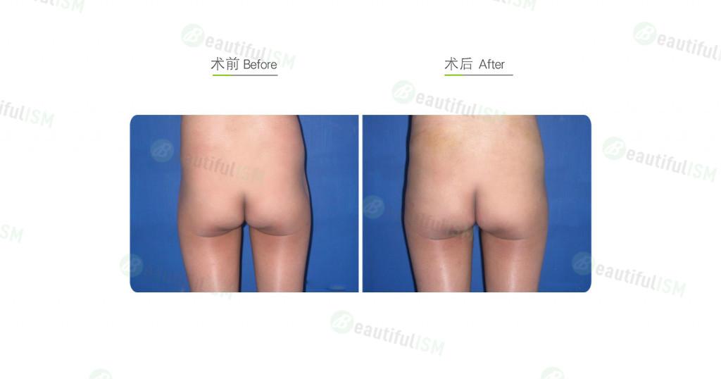丰臀-自体脂肪注射(女)效果图,案例前后对比照片