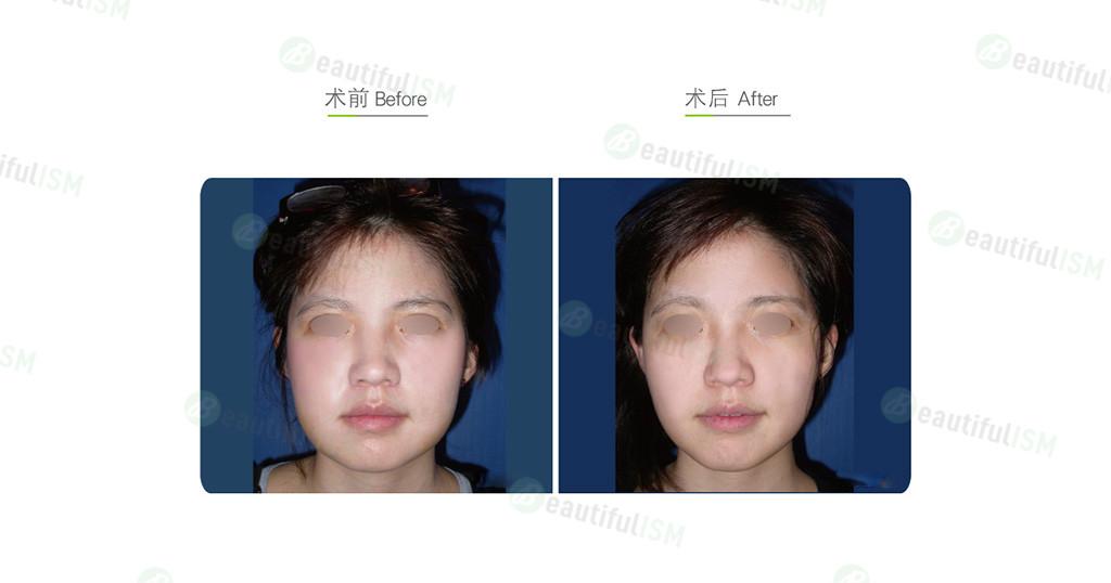 脸部吸脂(女)效果图,案例前后对比照片