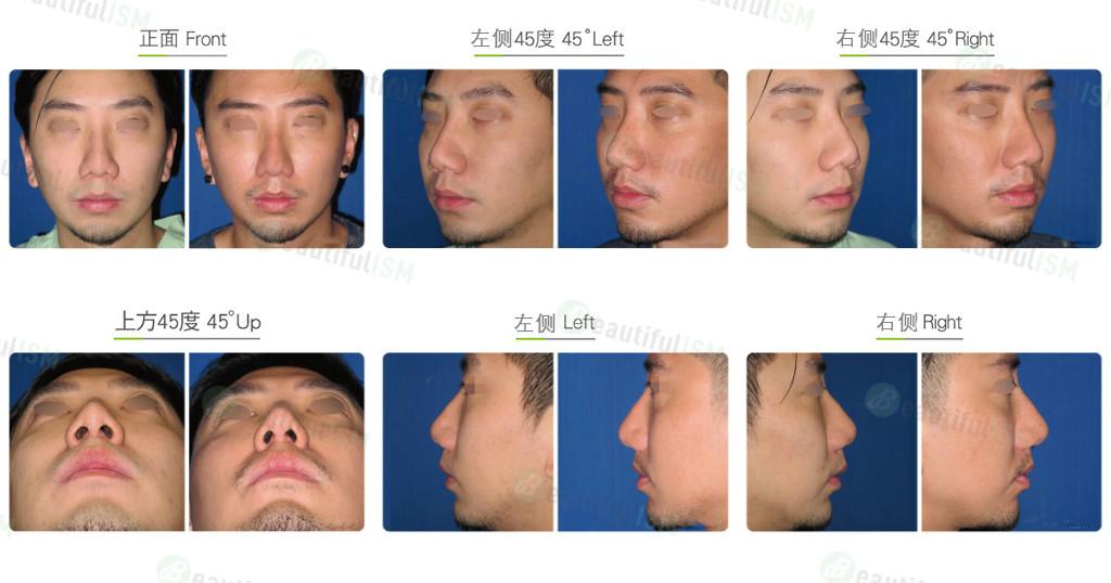 韩式隆鼻修复(男)效果图,案例前后对比照片