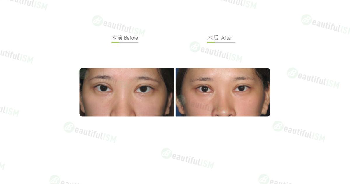 提眼肌矫正+双眼皮修复手术效果图,案例前后对比照片
