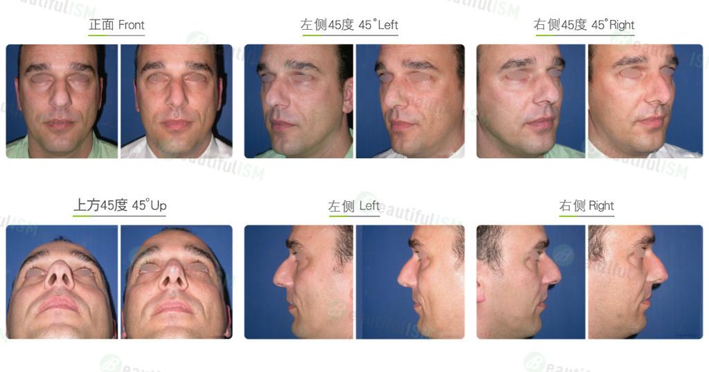 韩式鼻雕(男)案例效果图,手术前后对比照片