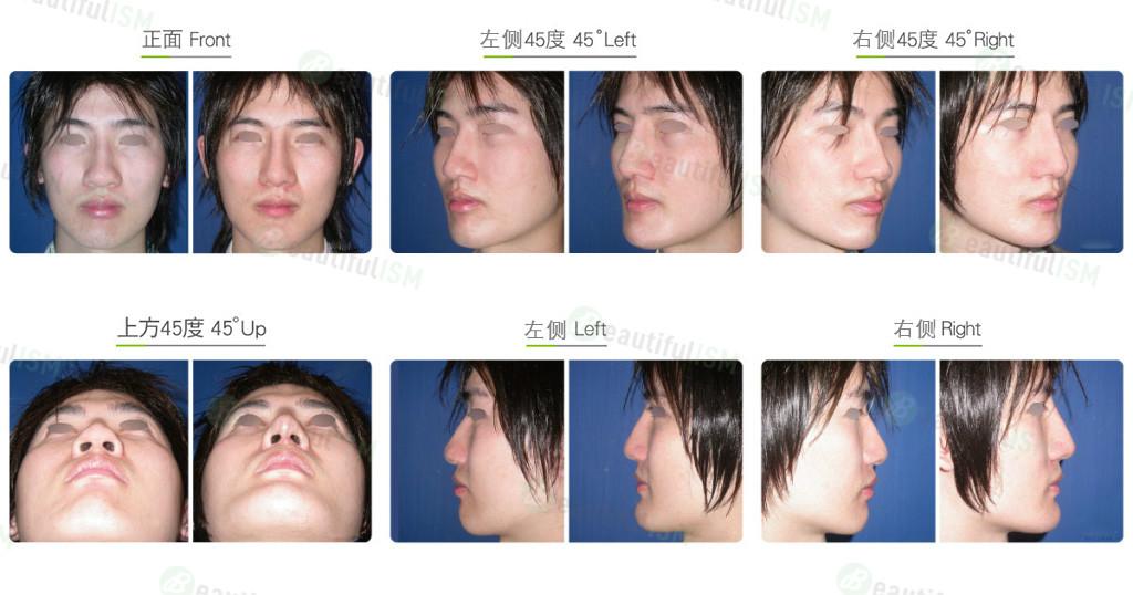 蒜头鼻整形+韩式隆鼻(男)效果图,案例前后对比照片