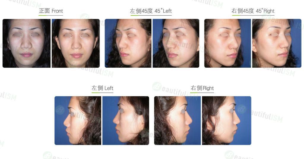 蒜头鼻整形+韩式隆鼻+鼻骨缩减(女)效果图,案例前后对比照片