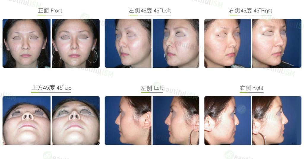 驼峰鼻整形(女)效果图,案例前后对比照片