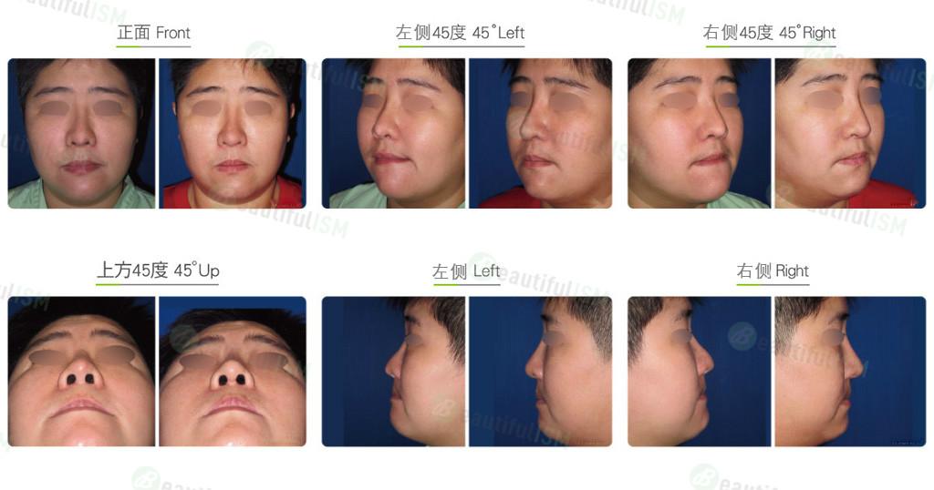 韩式隆鼻修复+鼻肉增厚(女)效果图,案例前后对比照片