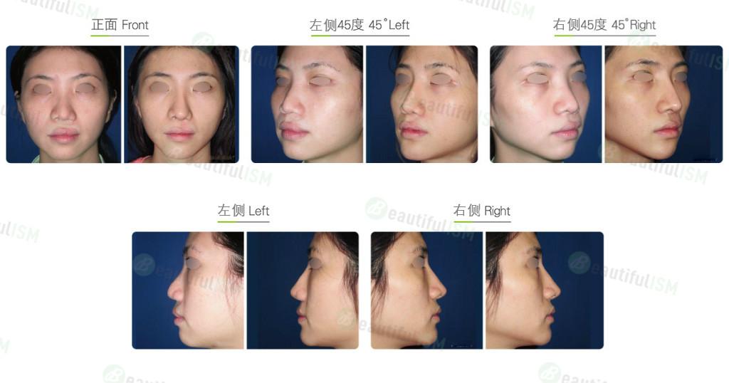 唇腭裂鼻重建(女)效果图,案例前后对比照片
