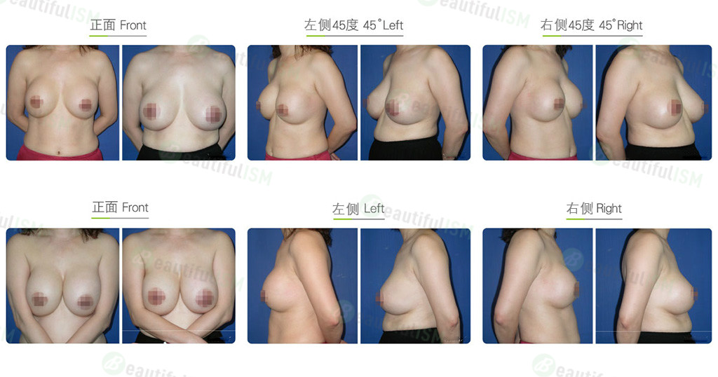 绒毛面义乳重做-水滴形义乳效果图,案例前后对比照片