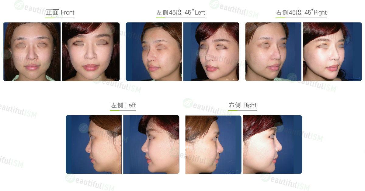 丰额头-自体脂肪填充(女)效果图,案例前后对比照片