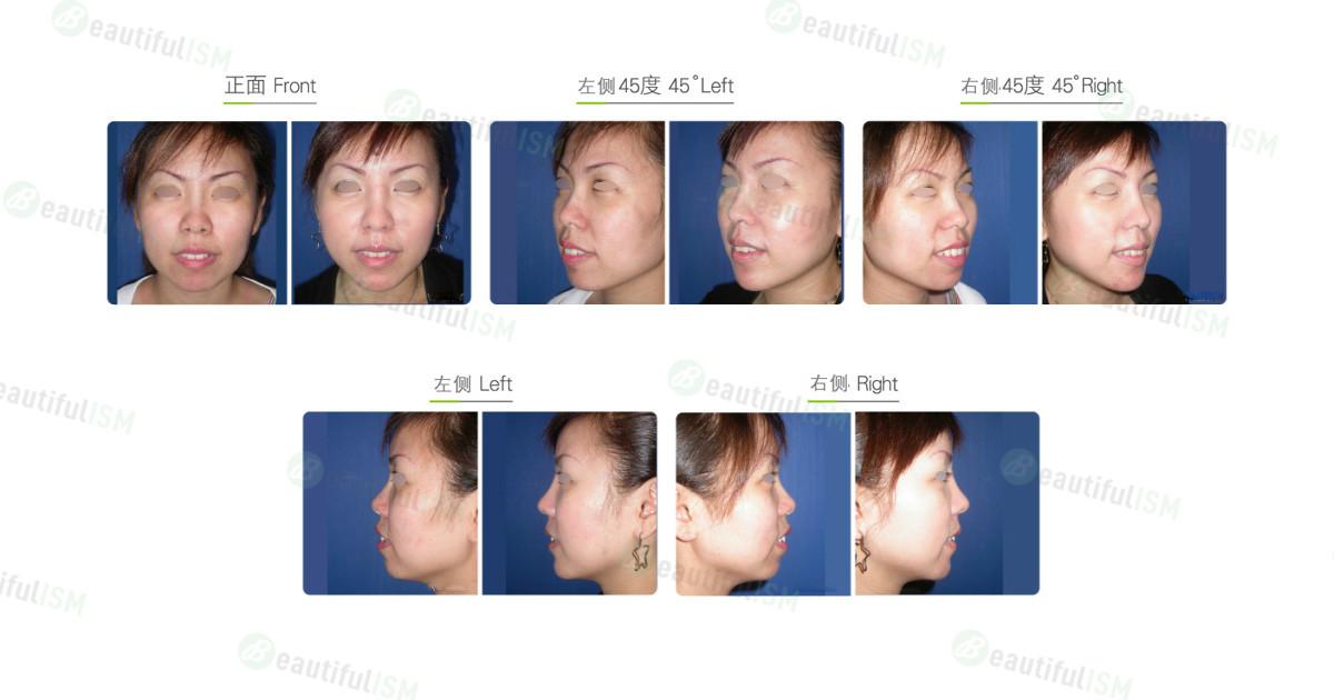 玻尿酸垫下巴(女)效果图,案例前后对比照片