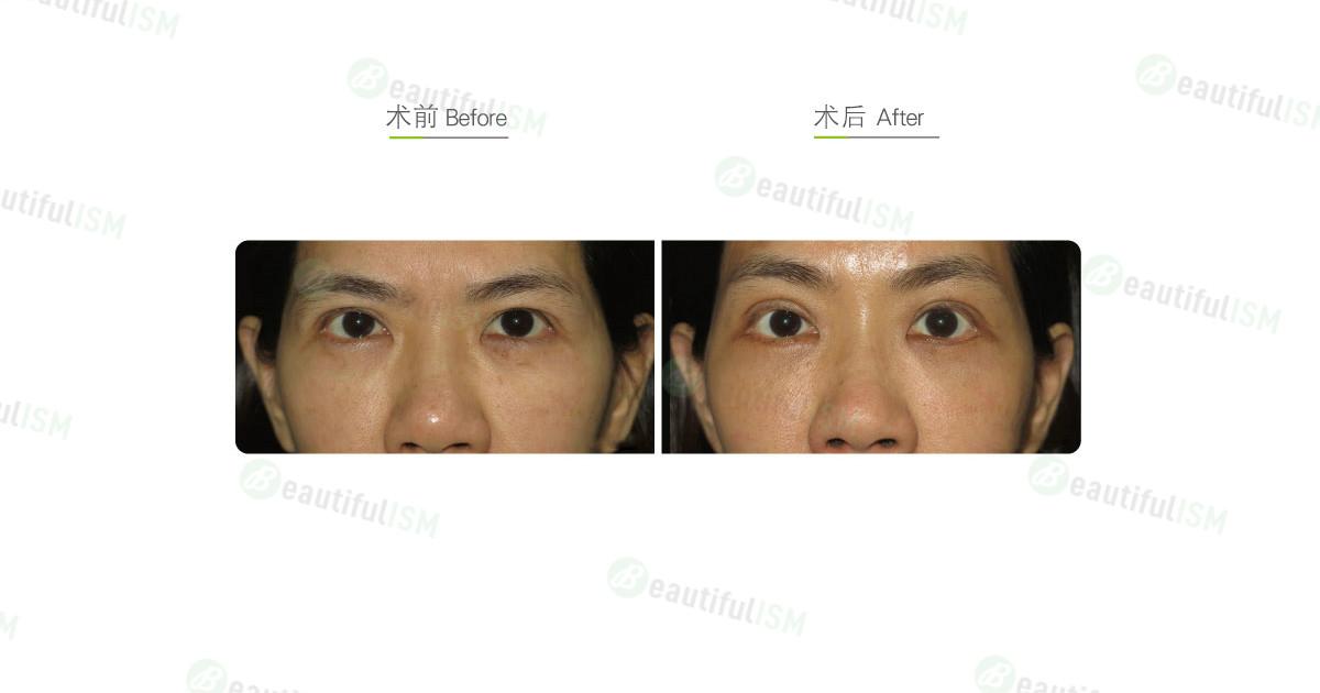 外切去眼袋(女)效果图,案例前后对比照片