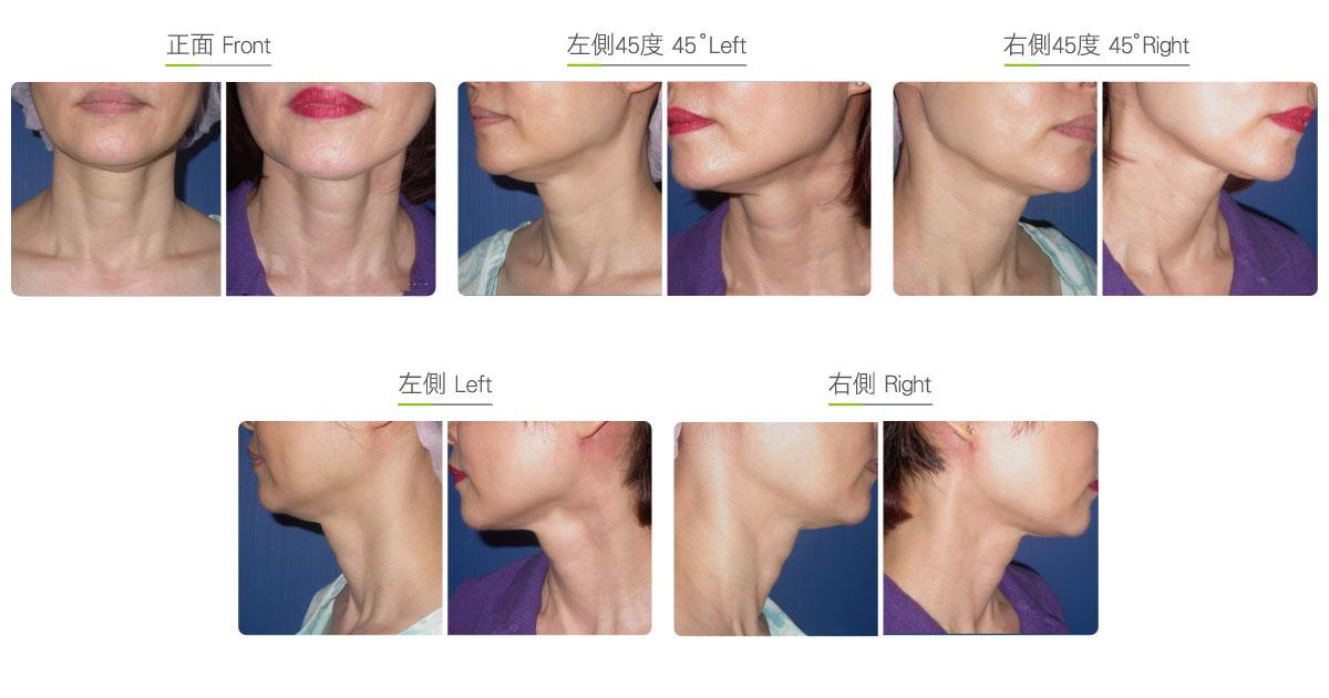 颈部拉皮(女)效果图,案例前后对比照片