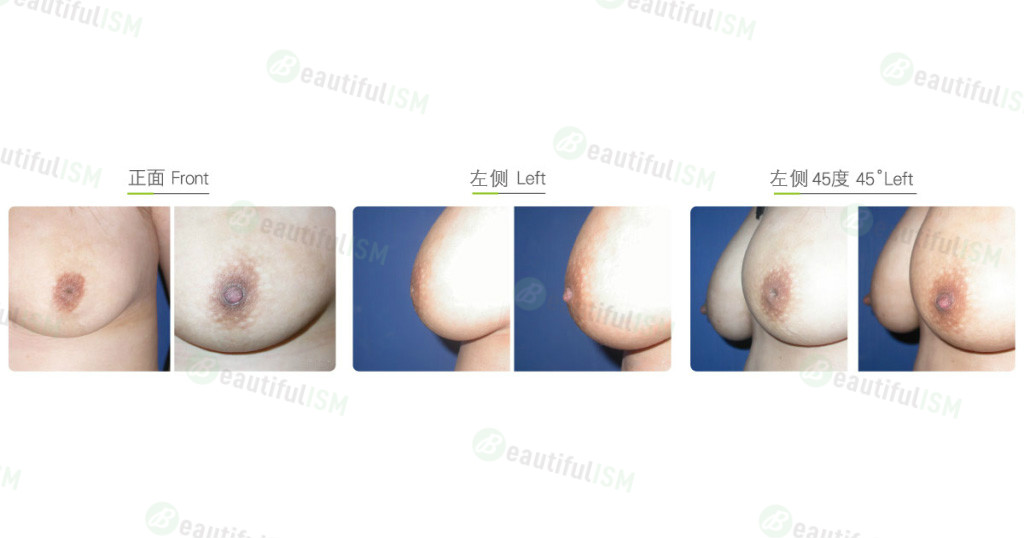乳头凹陷矫正效果图,案例前后对比照片