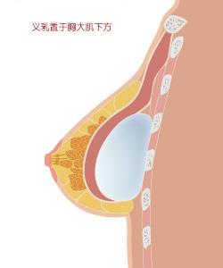 义乳置于胸大肌下方示意图
