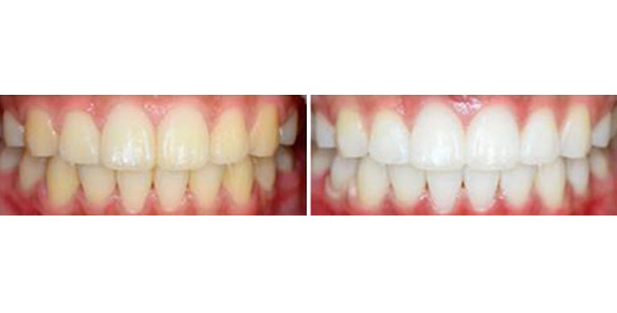 超声波洗牙效果图,案例前后对比照片