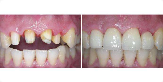 美容冠-合金烤瓷牙效果图,案例前后对比照片