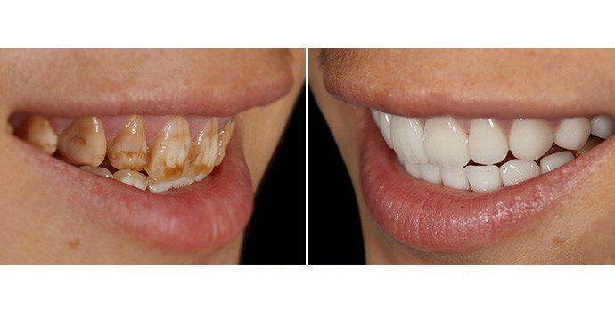 抛光洗牙效果图,案例前后对比照片