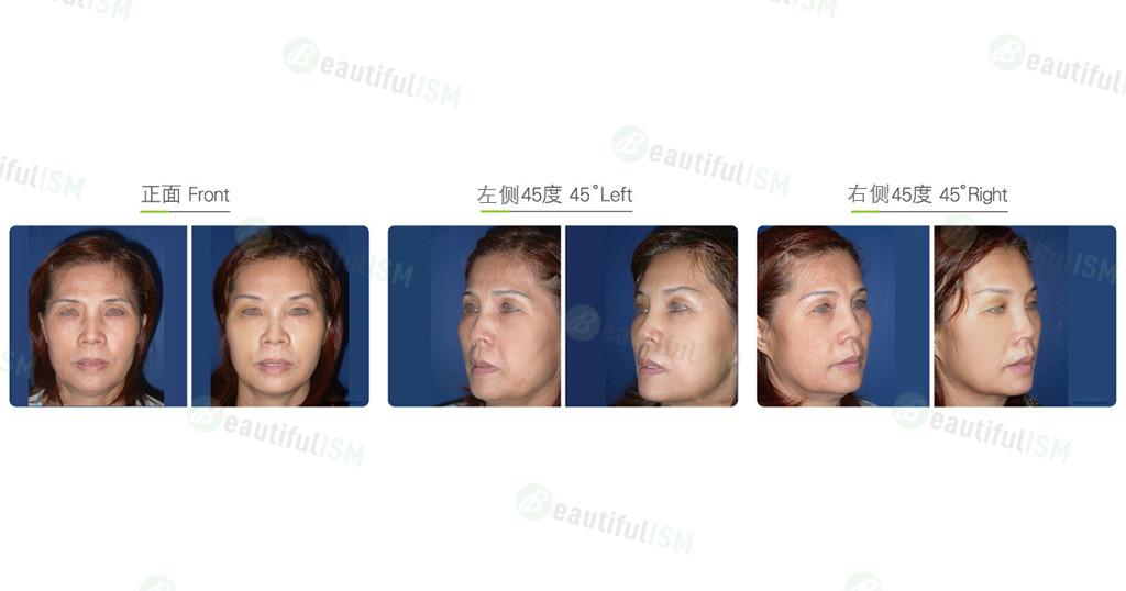 内窥镜额头提拉(女)效果图,案例前后对比照片