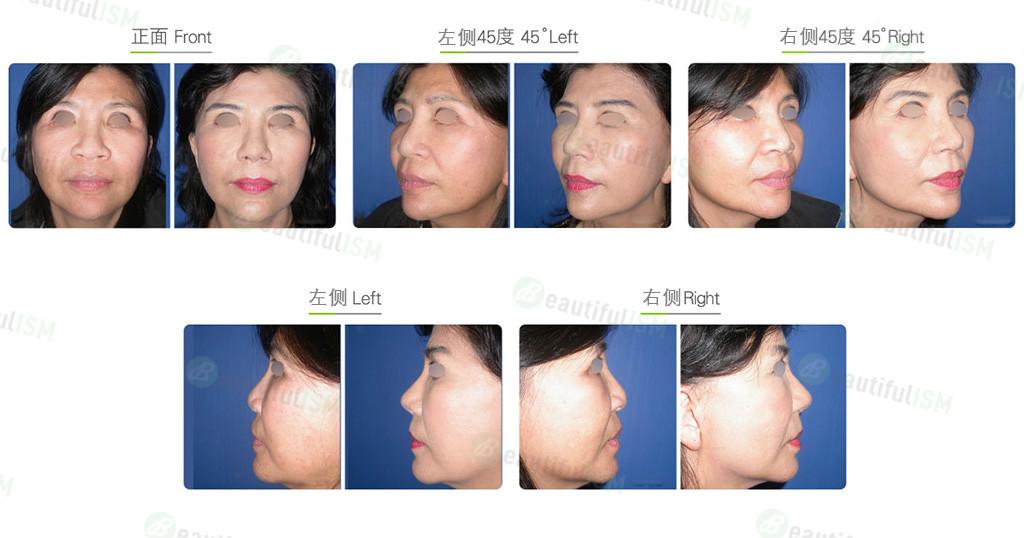 眉心垫高+三段式隆鼻(女)效果图,案例前后对比照片