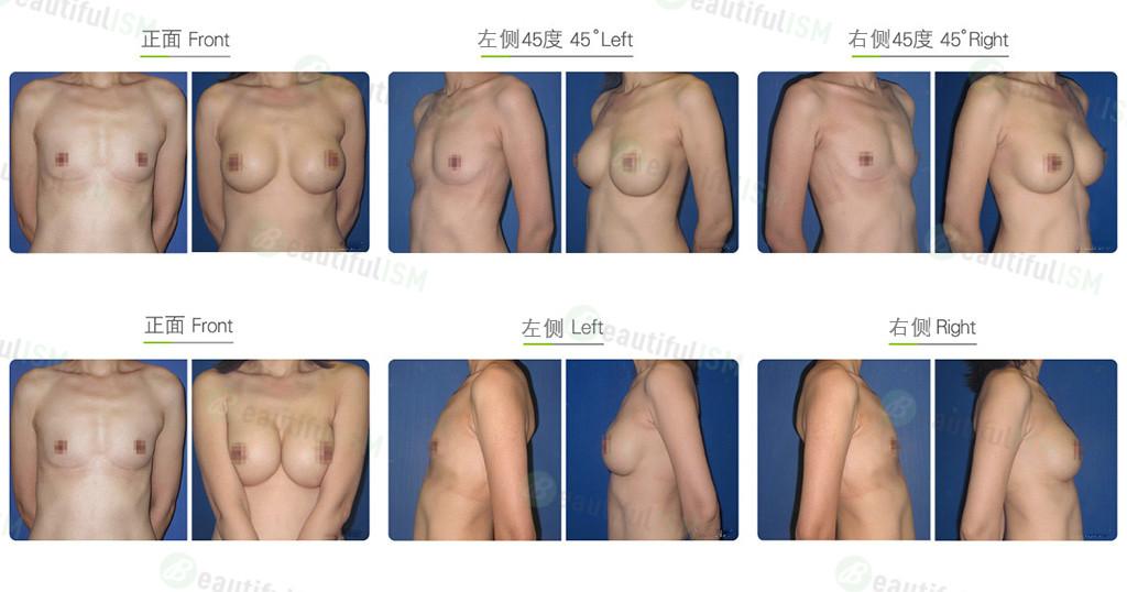 筋膜下假体隆胸效果图,案例前后对比照片